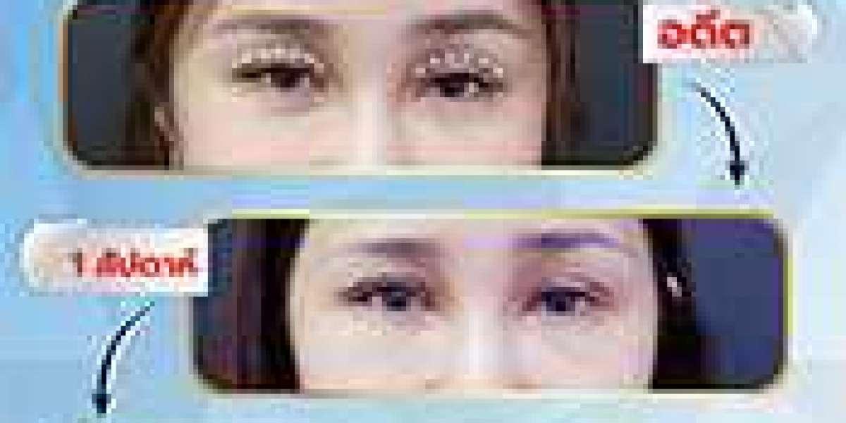 หน้าง่วง ตาปรือ ลืมตาไม่สุด คุณมีปัญหาเหล่านี้เหมือนกันไหม?